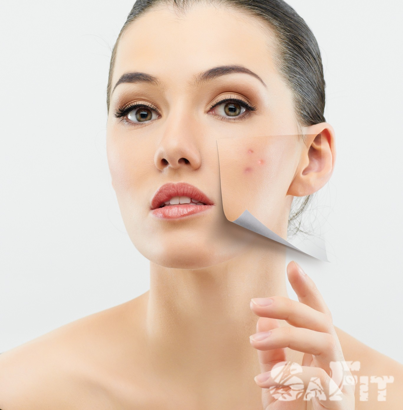Лечение акне в косметическом солоне УЛазерная косметология Улица 2-я Чапаева Чебоксары